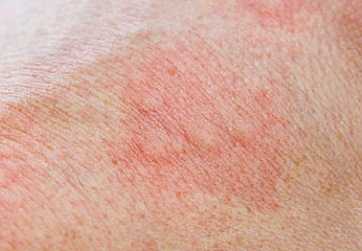 Hautausschlag des Eichenprozessionsspinners